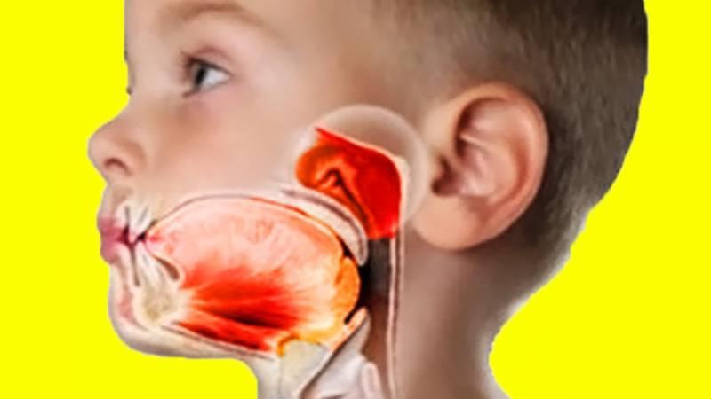 Аденоиды у детей и как избежать операции